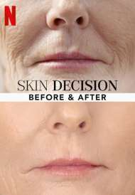 Skin Decision: Before and After (Season 1) (2020)